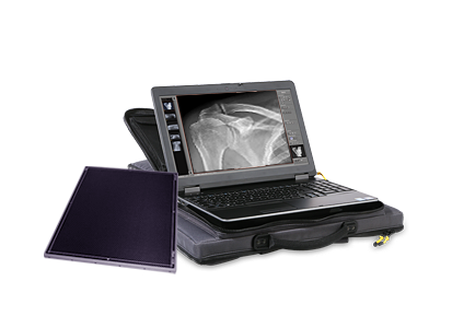 Leonardo DR nano: Ultra lightweight, portable X-ray system for digital radiography in a backpack
