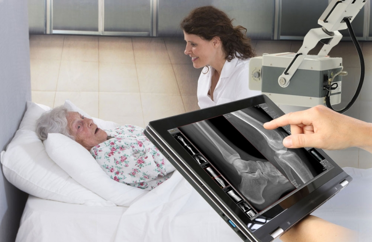 Digital radiography – High-resolution digital X-ray images and reduced radiation exposure
