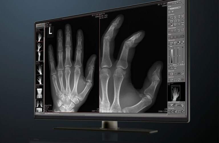 Digital X-ray with dicomPACS