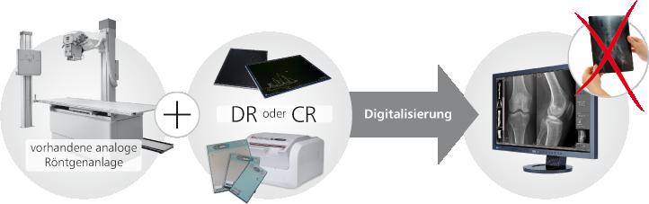 Digitales Rontgen Einfacher Wechsel Verringerte Strahlenbelastung